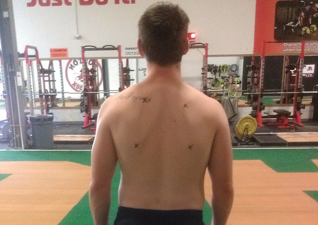 A good visual of the shoulder and scapular positioning in a Right BC pattern--the borders of the scapulae have been marked with X's for emphasis.